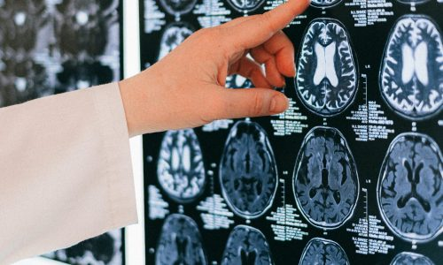 doctor pointing at brain scan